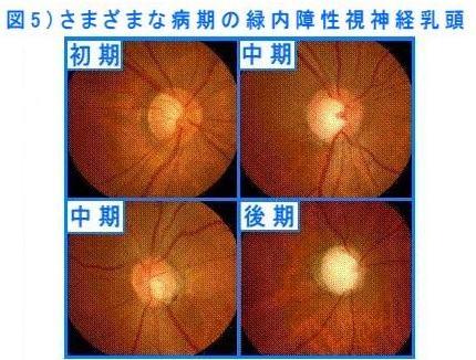 高い 眼 症状 圧