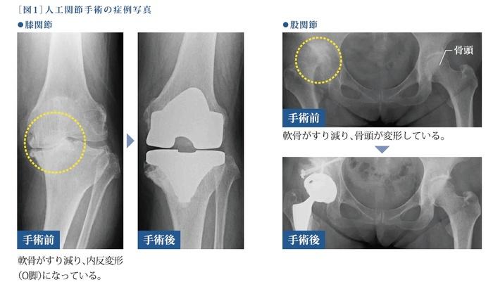 人工関節手術の症例写真